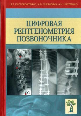 Книга Издательство Беларусь Цифровая рентгенометрия позвоночника